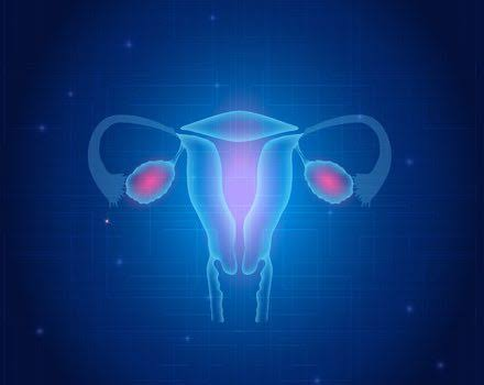 तीस वर्षांपेक्षा कमी वयाच्या स्त्रियांमधील 34 टक्के जणींना  ग्रासले 'डिमिनिश्ड ओव्हरियन रिझर्व्ह'ने